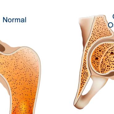 Osteoporose e Atividade Física